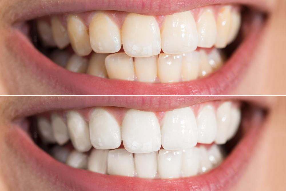 Teeth Whitening Benefits