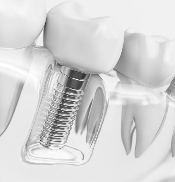 Dental Implant Restorations Fitchburg WI - Mendota Springs Dentistry