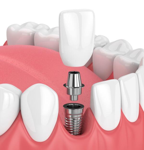 Dental Implants Fitchburg WI - Mendota Springs Dentistry