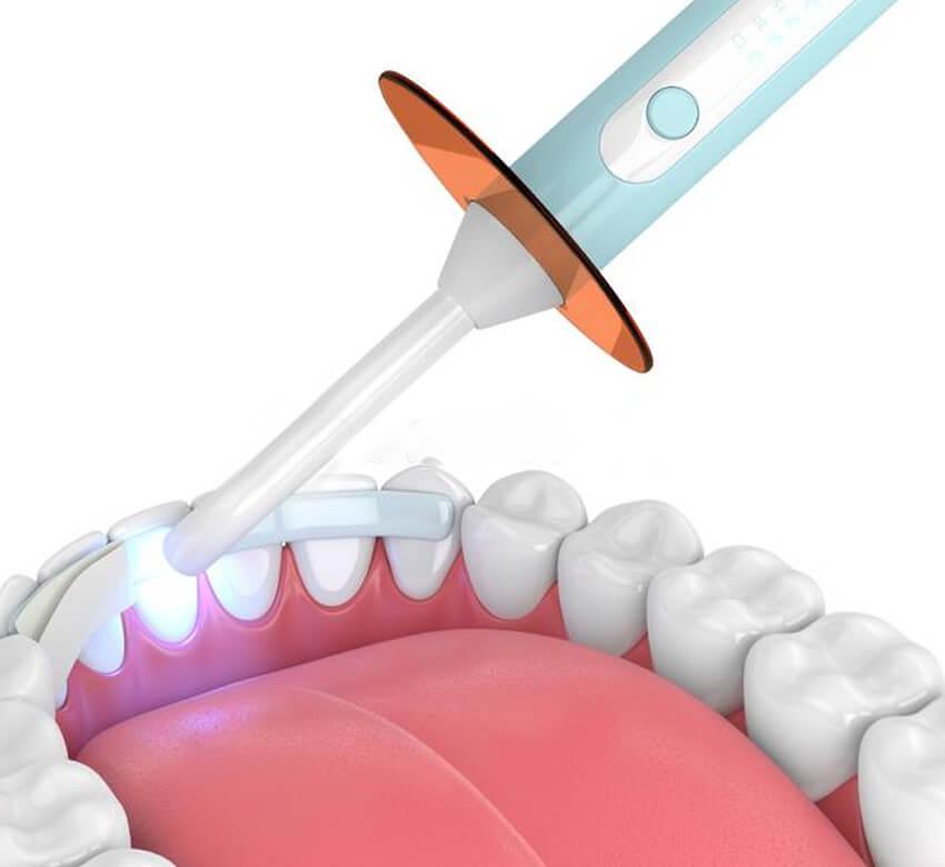 Dental Bonding Fitchburg WI - Mendota Springs Dentistry