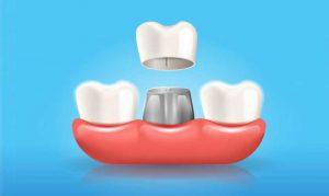dental-crown